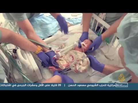 بالفيديو إنسان يولد مرتين في ولاية هيوستن الأميركية